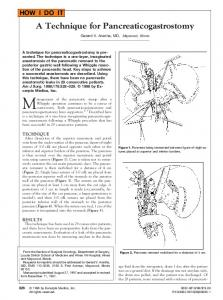A Technique for Pancreaticogastrostomy - The American Journal of ...