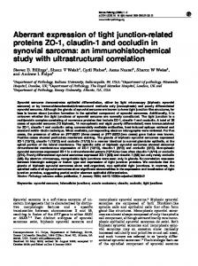 Aberrant expression of tight junction-related proteins ZO-1 ... - Nature