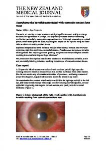 Acanthamoeba keratitis associated with cosmetic contact lens wear