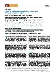 Acquired tracheoesophageal fistula status post laryngeal neoplasm ...