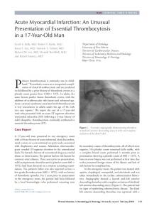 Acute Myocardial Infarction: An Unusual