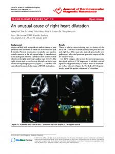An unusual cause of right heart dilatation - Springer Link