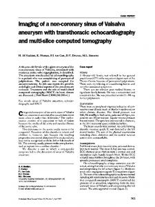 aneurysm with transthoracic echocardiography and multislice ... - NCBI