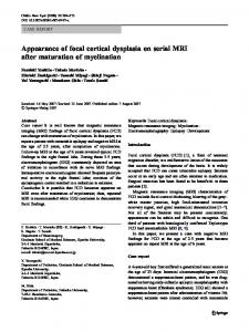 Appearance of focal cortical dysplasia on serial MRI ... - Springer Link