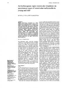 Arrhythmogenic right ventricular dysplasia: an ... - Europe PMC