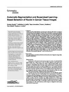 Automatic segmentation and supervised ... - Wiley Online Library
