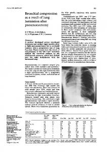 Bronchial compression - Europe PMC