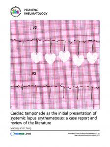 Cardiac tamponade as the initial presentation of systemic lupus ...