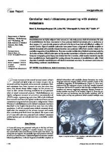 Cerebellar medulloblastoma presenting with skeletal ... - TSpace