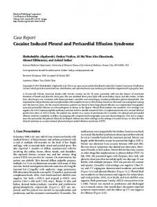 Cocaine Induced Pleural and Pericardial Effusion Syndrome