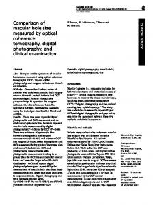 Comparison of macular hole size measured by optical ... - Nature
