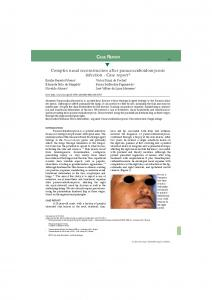 Complex nasal reconstruction after