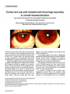 Contact lens use with intraestromal hemorrhage secondary ... - SciELO