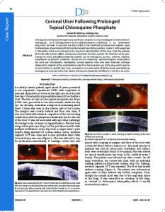 Corneal Ulcer Following Prolonged Topical Chloroquine ... - DJO