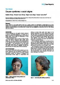 Crouzon syndrome - BMJ Case Reports