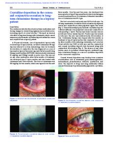 Crystalline deposition in the cornea and conjunctiva ...