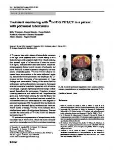 CT in a patient ... - Springer Link