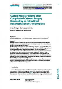 Cystoid Macular Edema after Complicated Cataract ... - ScienceOpen