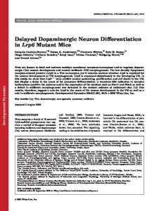 Delayed dopaminergic neuron differentiation in ... - Wiley Online Library