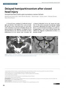 Delayed hemiparkinsonism after closed head injury - Scielo.br