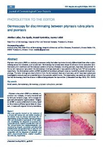 Dermoscopy for discriminating between pityriasis