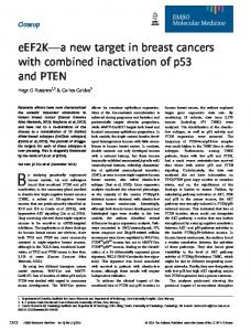 eEF2Ka new target in breast cancers with ... - Wiley Online Library