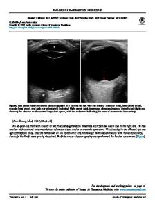 Elderly Man With Painless Vision Loss - Annals of Emergency Medicine