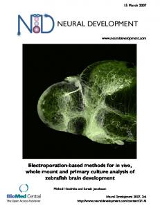 Electroporation-based methods forin vivo, whole mount and primary ...