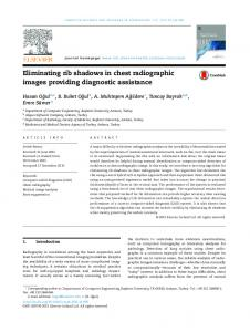 Eliminating rib shadows in chest radiographic images providing ...