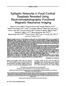 Epileptic networks in focal cortical dysplasia revealed ... - BioMedSearch