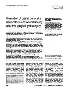 Evaluation of palatal donor site haemostasis ... - Wiley Online Library