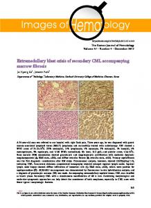 Extramedullary blast crisis of secondary CML ... - KoreaMed Synapse