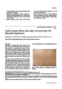 Facial Eruptive Vellus Hair Cysts Occurred after 3% Minoxidil Application