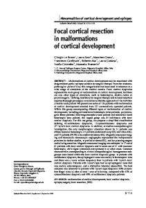 Focal cortical resection in malformations of cortical ... - Semantic Scholar