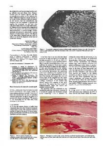 Fontana stain for melanin pigment may also Other ... - Europe PMC