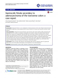 Gastrocolic fistula secondary to adenocarcinoma of the ... - Springer Link