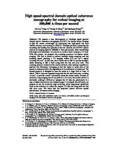 High speed spectral domain optical coherence tomography for retinal ...