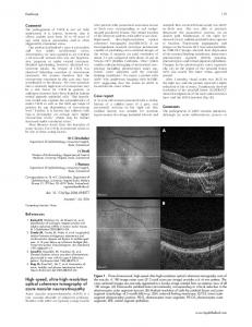 High-speed, ultra-high-resolution optical coherence tomography of ...