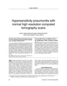 Hypersensitivity pneumonitis with normal high resolution computed ...
