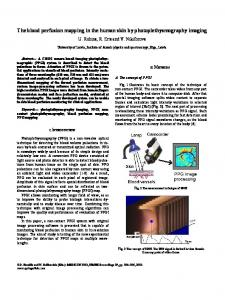 IFMBE Proceedings 29 - The blood perfusion mapping ... - Springer Link