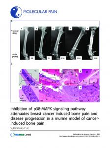 Inhibition of p38-MAPK signaling pathway attenuates breast cancer ...