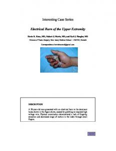 Interesting Case Series Electrical Burn of the Upper Extremity - ePlasty