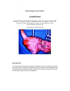 Interesting Case Series Lymphedema - BioMedSearch