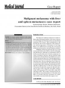 Malignant melanoma with liver and spleen metastases: case report