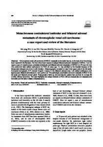 Metachronous contralateral testicular and bilateral ... - Springer Link