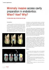 Minimally invasive access cavity preparation in endodontics: When ...