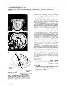 Misdiagnosis of amyotrophic lateral sclerosis in a patient with ...