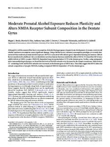 Moderate Prenatal Alcohol Exposure Reduces Plasticity and Alters ...