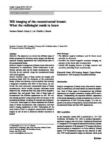 MR imaging of the reconstructed breast - Springer Link