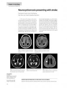 Neurocysticercosis presenting with stroke - Semantic Scholar